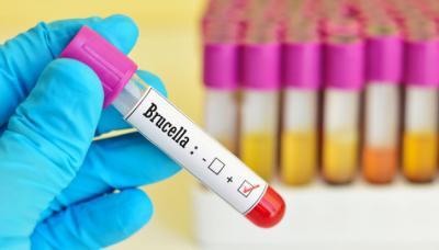 bruceloza-continua-sa-se-extinda-in-china-numarul-infectarilor-s-a-dublat